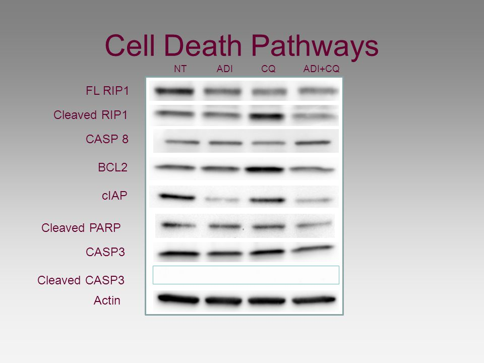 Cell Death Pathways FL RIP1 Cleaved RIP1 CASP 8 BCL2 cIAP Cleaved PARP