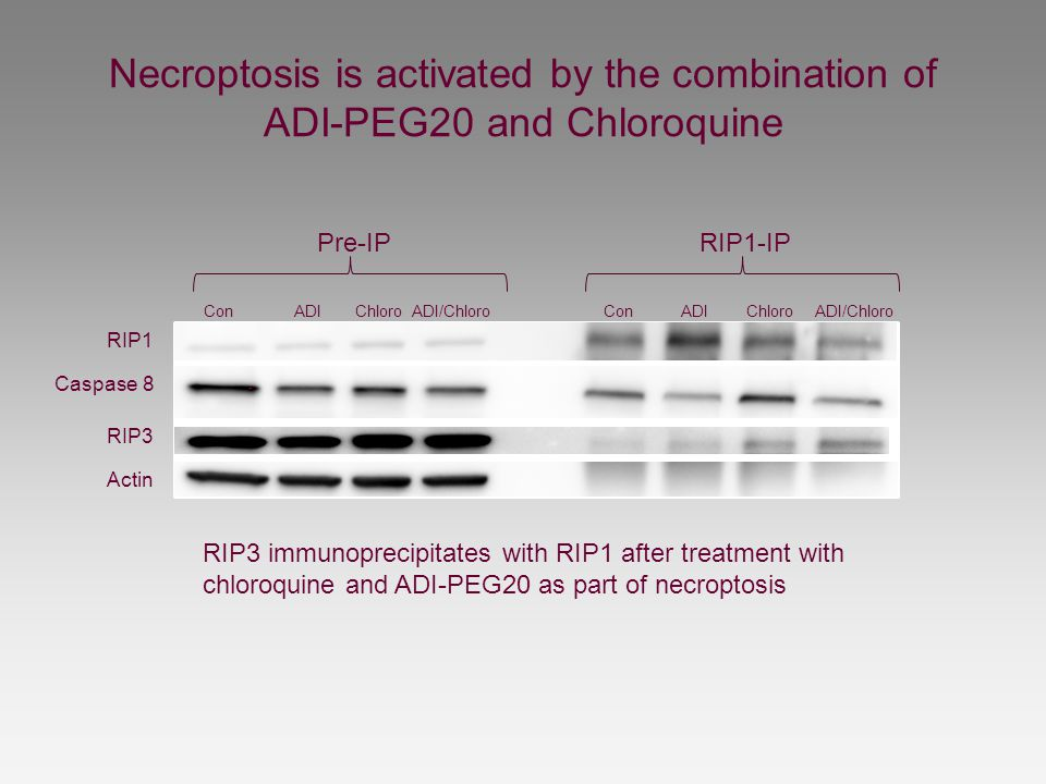 Necroptosis is activated by the combination of ADI-PEG20 and Chloroquine