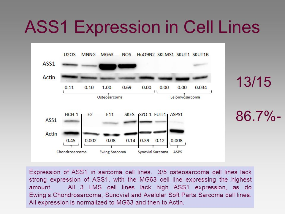 ASS1 Expression in Cell Lines