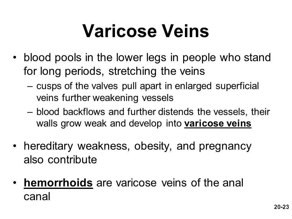 Varicose Veins blood pools in the lower legs in people who stand for long periods, stretching the veins.
