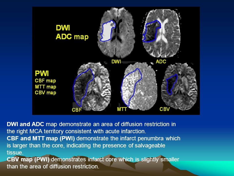 DWI and ADC map demonstrate an area of diffusion restriction in the right MCA territory consistent with acute infarction. CBF and MTT map (PWI) demonstrate the infarct penumbra which is larger than the core, indicating the presence of salvageable tissue. CBV map (PWI) demonstrates infarct core which is slightly smaller than the area of diffusion restriction.