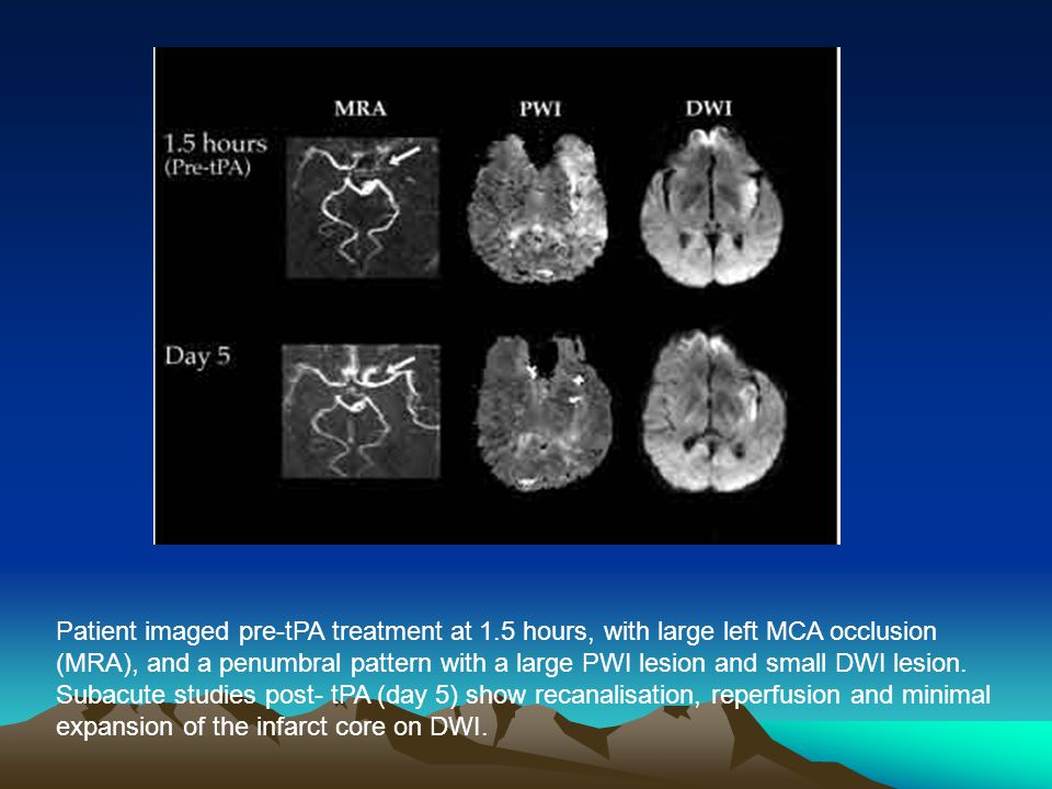 Patient imaged pre-tPA treatment at 1