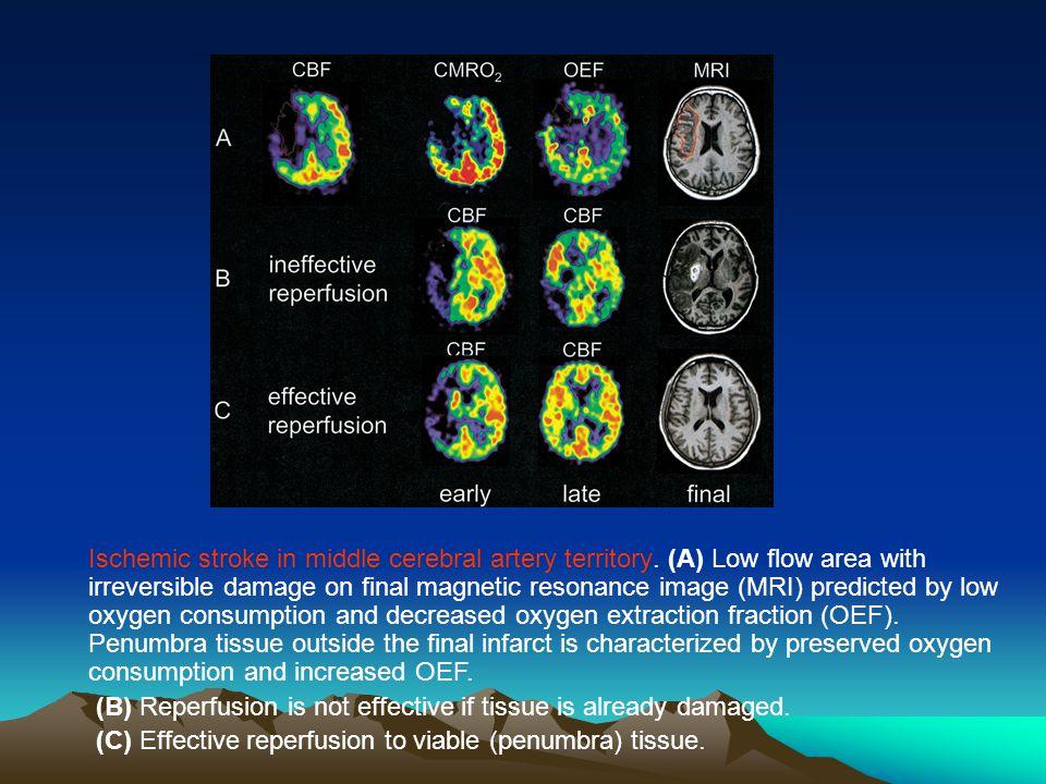Ischemic stroke in middle cerebral artery territory
