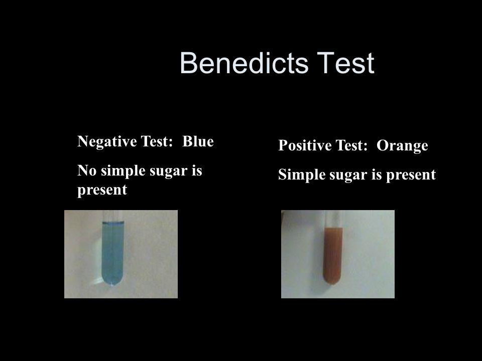 Benedicts Test Negative Test: Blue Positive Test: Orange