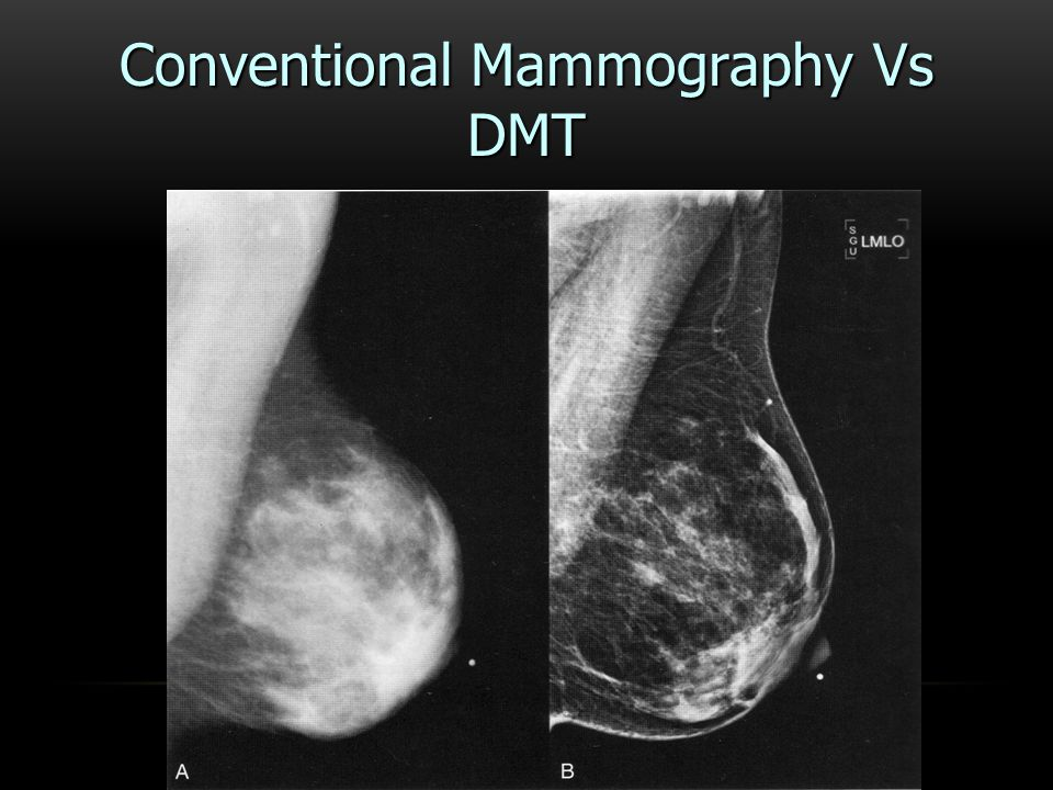 Conventional Mammography Vs DMT