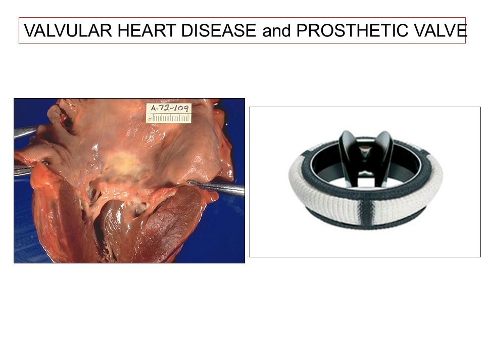 VALVULAR HEART DISEASE and PROSTHETIC VALVE