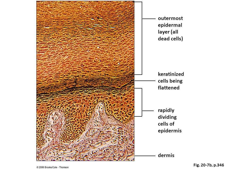 outermost epidermal layer (all dead cells) keratinized cells being