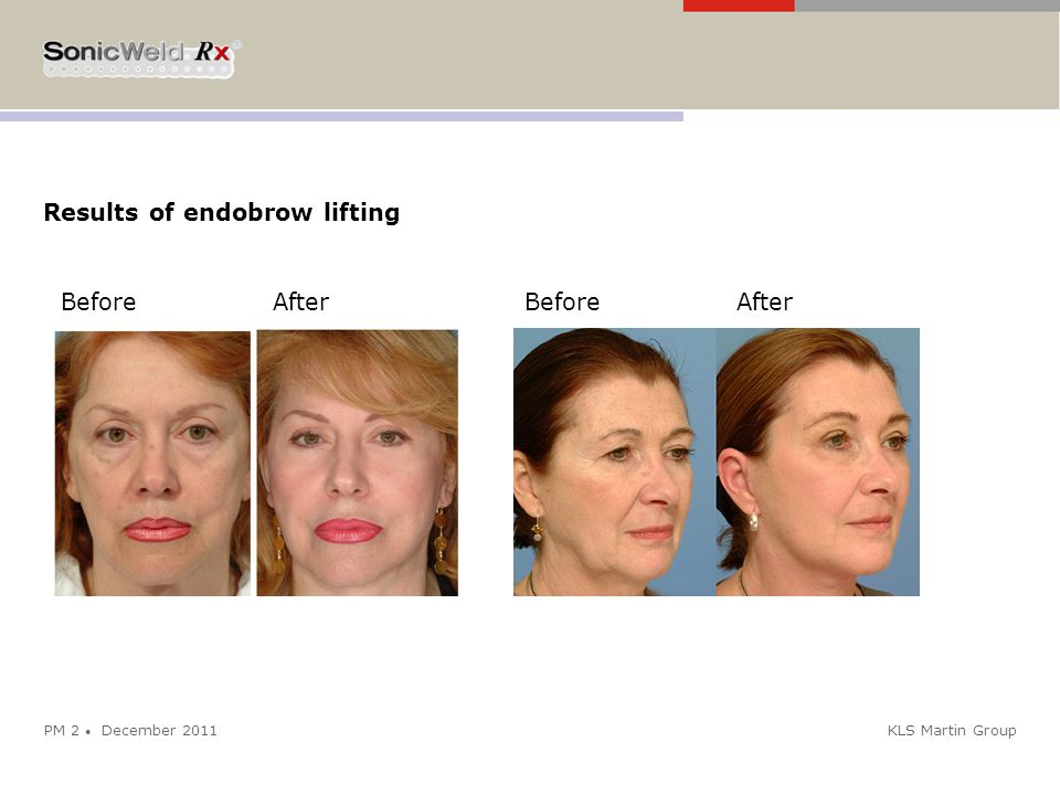 Results of endobrow lifting