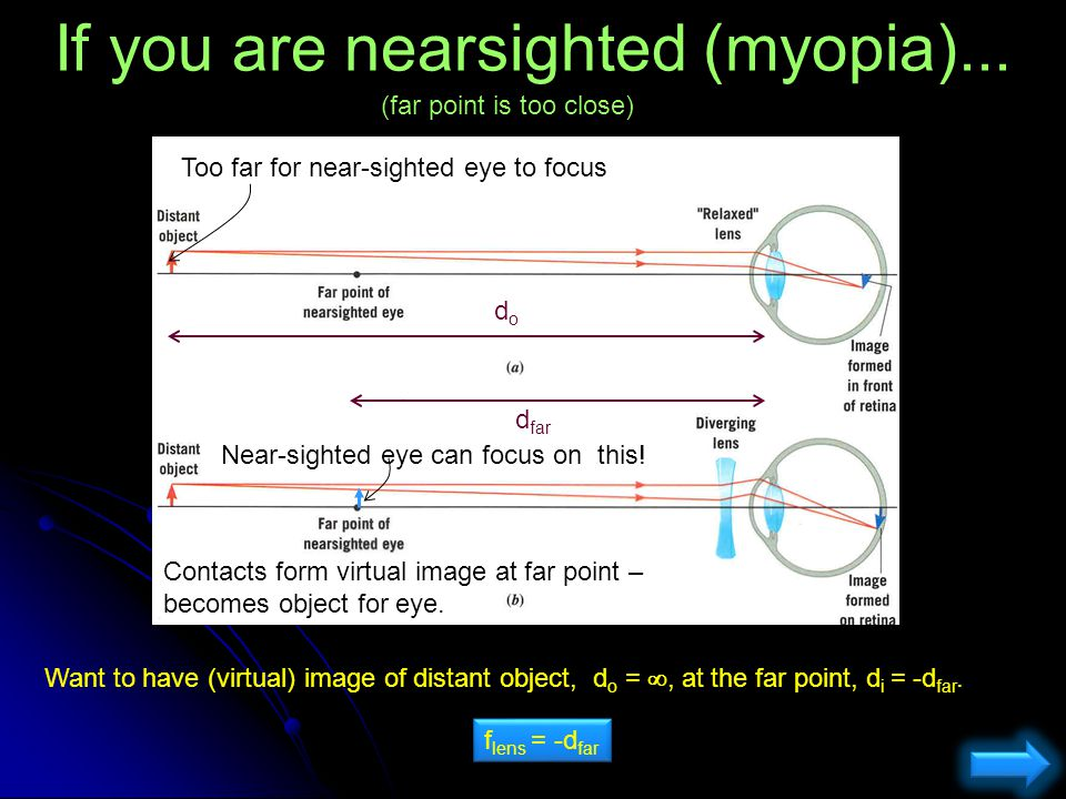 If you are nearsighted (myopia)...