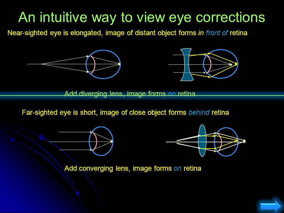 An intuitive way to view eye corrections