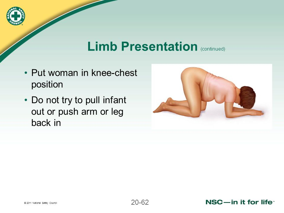 Limb Presentation (continued)