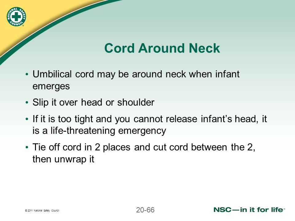 Cord Around Neck Umbilical cord may be around neck when infant emerges