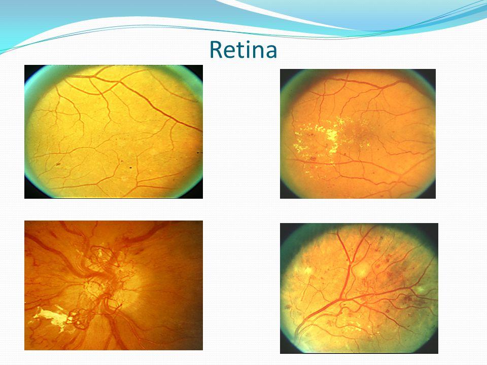 Retina Upper left is dot hemm, upper right Diabetic macular edema, Lower left neovascular lower right proliferative.