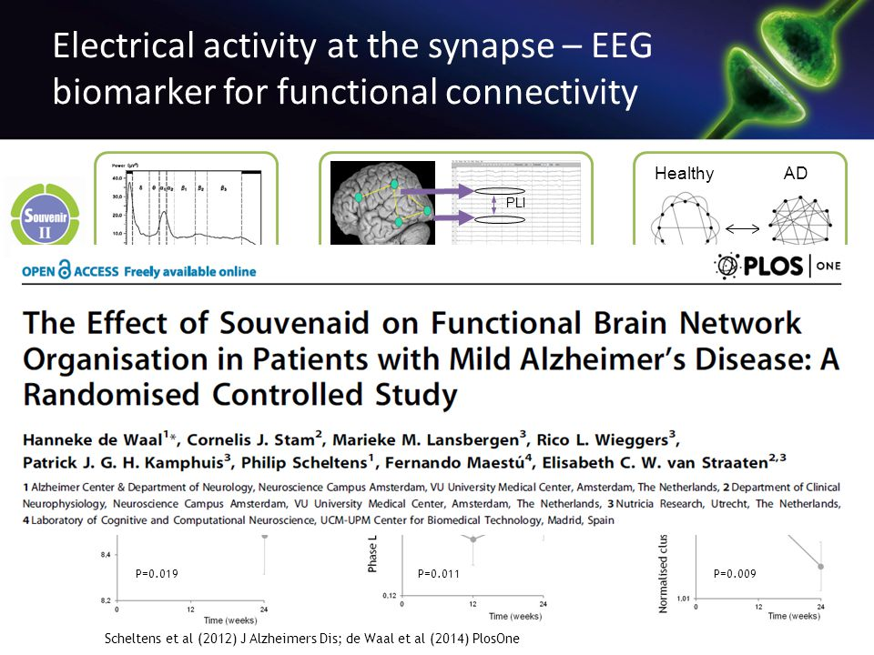 Electrical activity at the synapse – EEG biomarker for functional connectivity