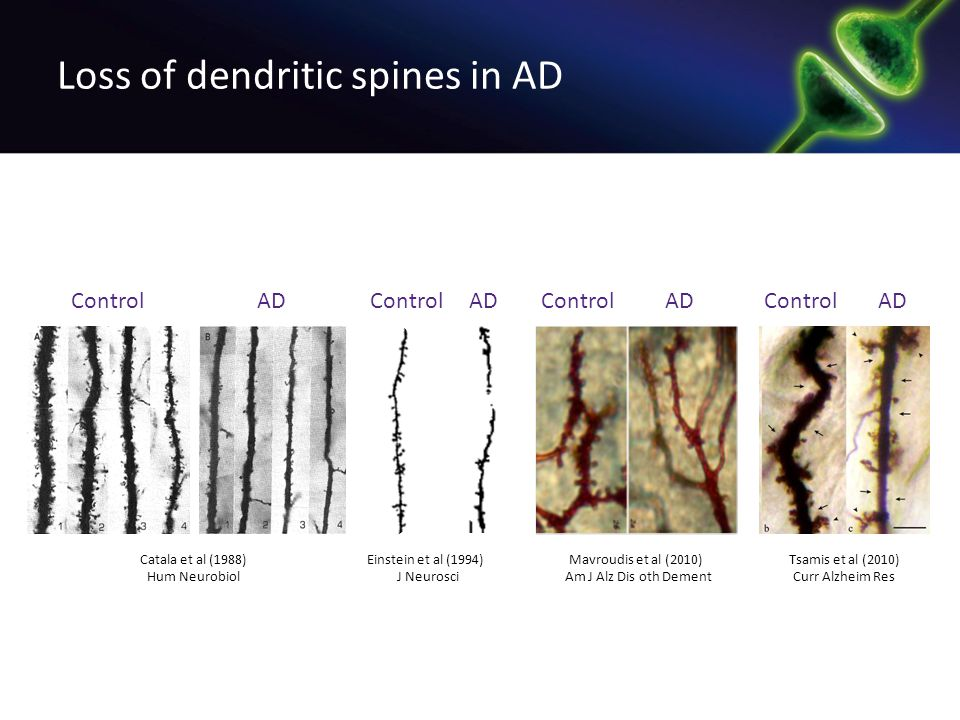 Loss of dendritic spines in AD