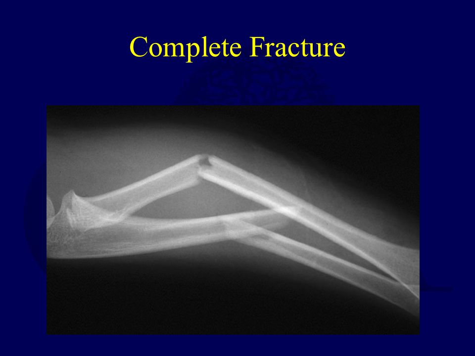 Complete Fracture