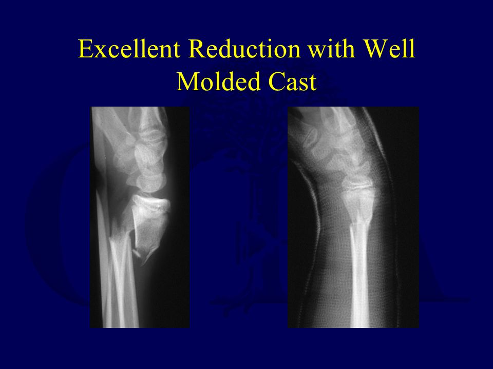 Excellent Reduction with Well Molded Cast
