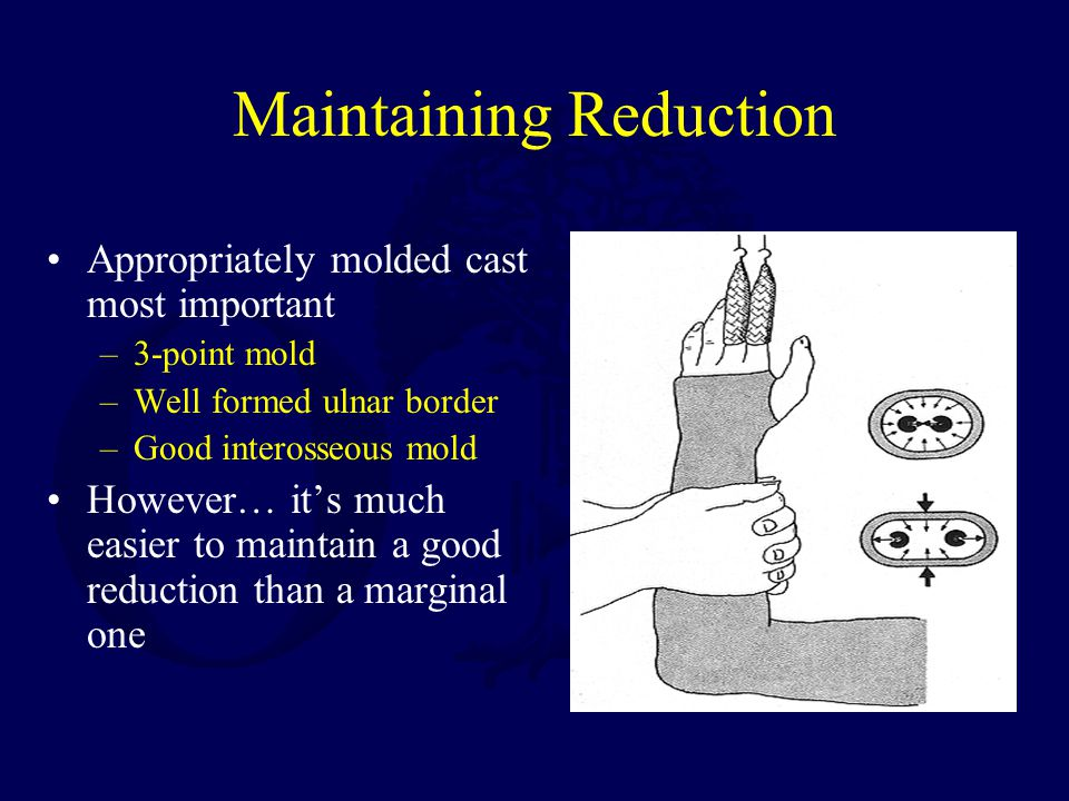 Maintaining Reduction