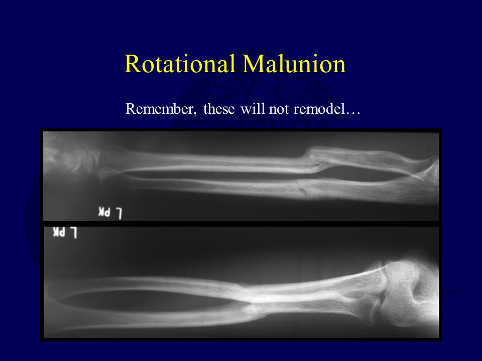 Rotational Malunion Remember, these will not remodel…