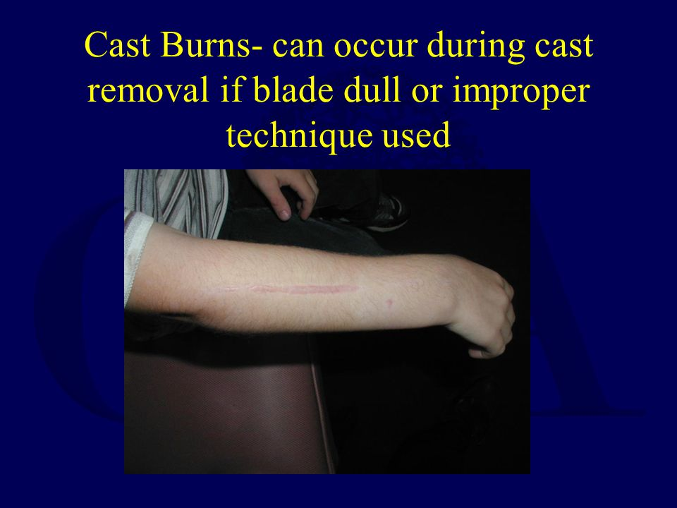 Cast Burns- can occur during cast removal if blade dull or improper technique used