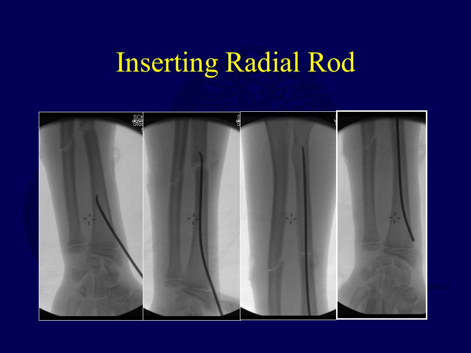 Inserting Radial Rod