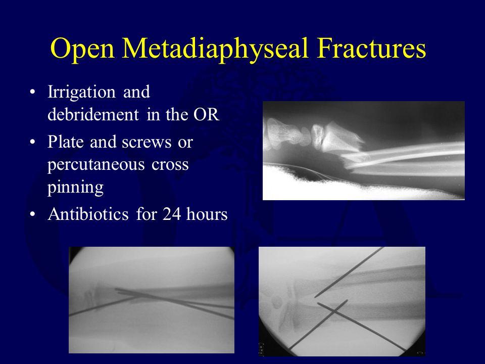 Open Metadiaphyseal Fractures