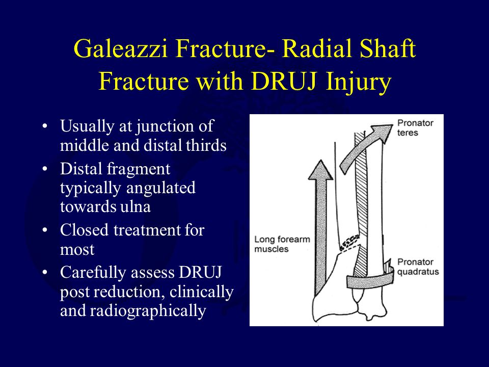 Galeazzi Fracture- Radial Shaft Fracture with DRUJ Injury