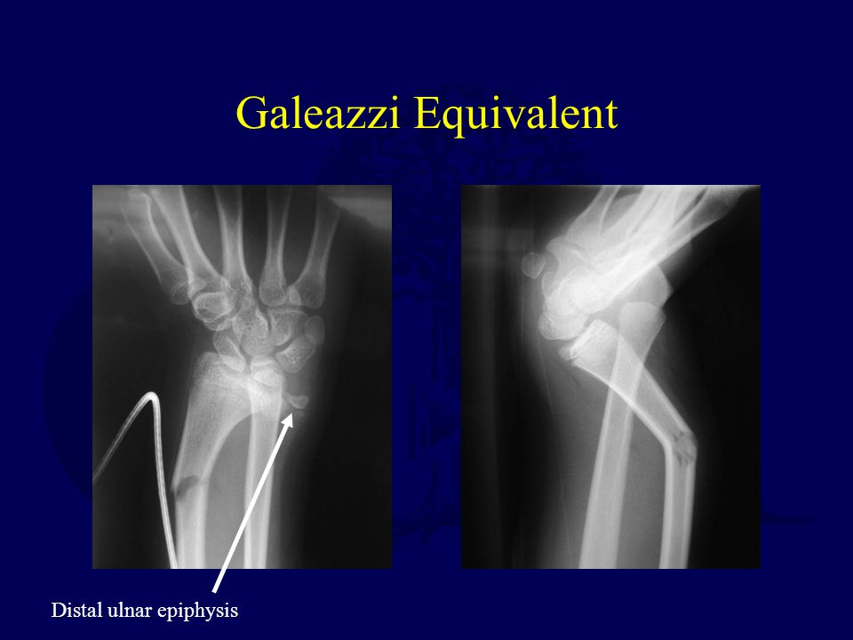 Galeazzi Equivalent Distal ulnar epiphysis