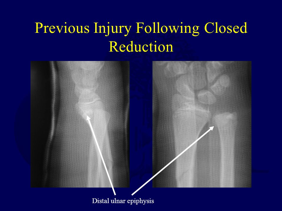 Previous Injury Following Closed Reduction