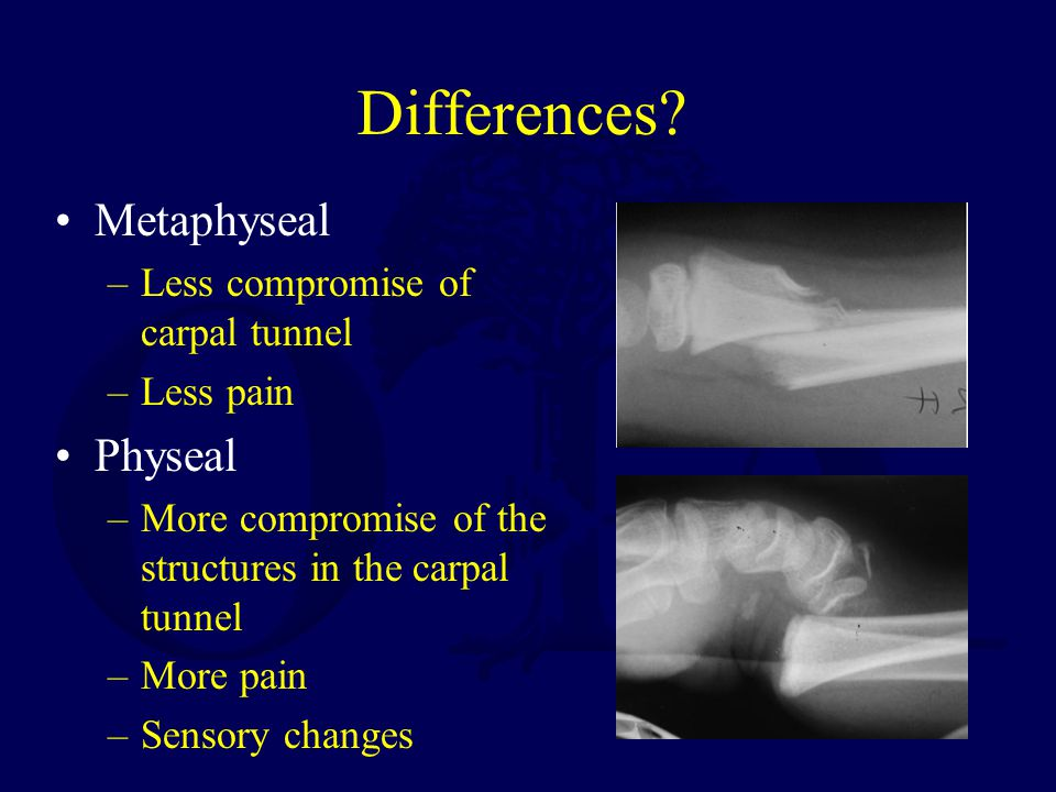 Differences Metaphyseal Physeal Less compromise of carpal tunnel