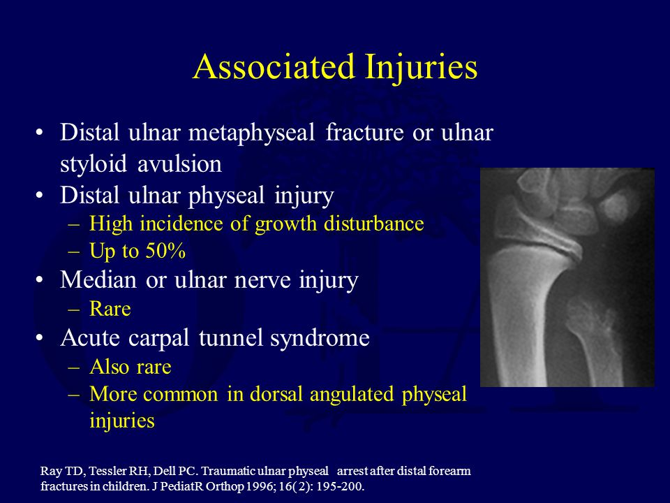 Associated Injuries Distal ulnar metaphyseal fracture or ulnar styloid avulsion. Distal ulnar physeal injury.