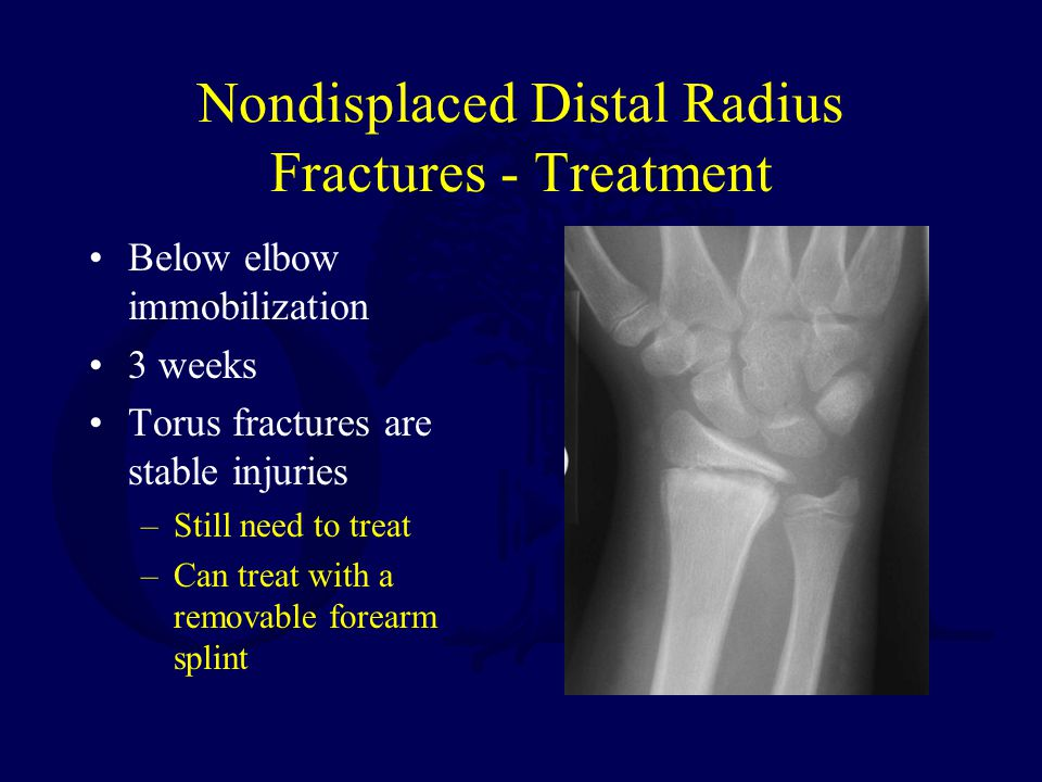Nondisplaced Distal Radius Fractures - Treatment