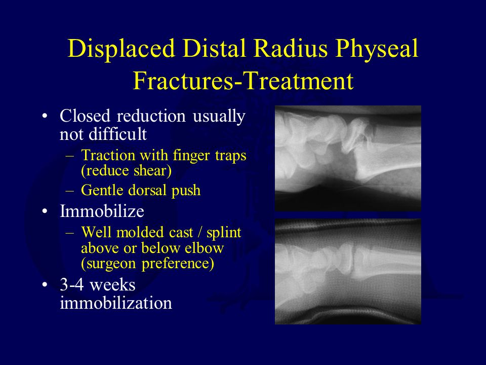 Displaced Distal Radius Physeal Fractures-Treatment