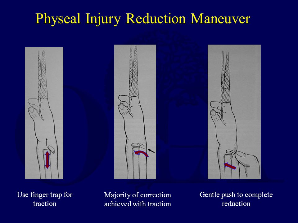 Physeal Injury Reduction Maneuver