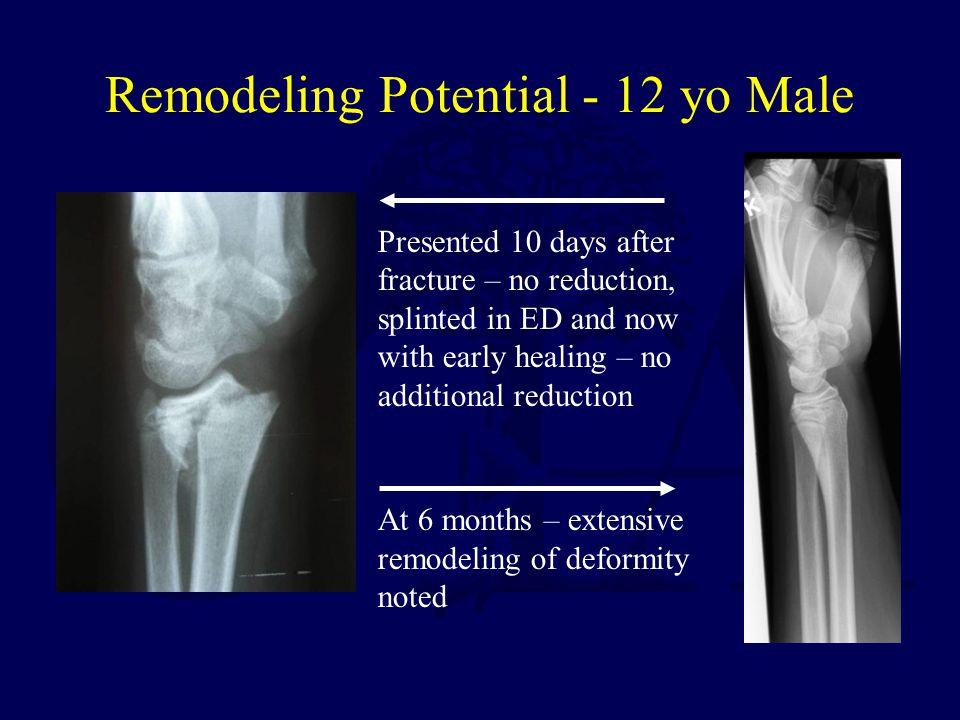 Remodeling Potential - 12 yo Male