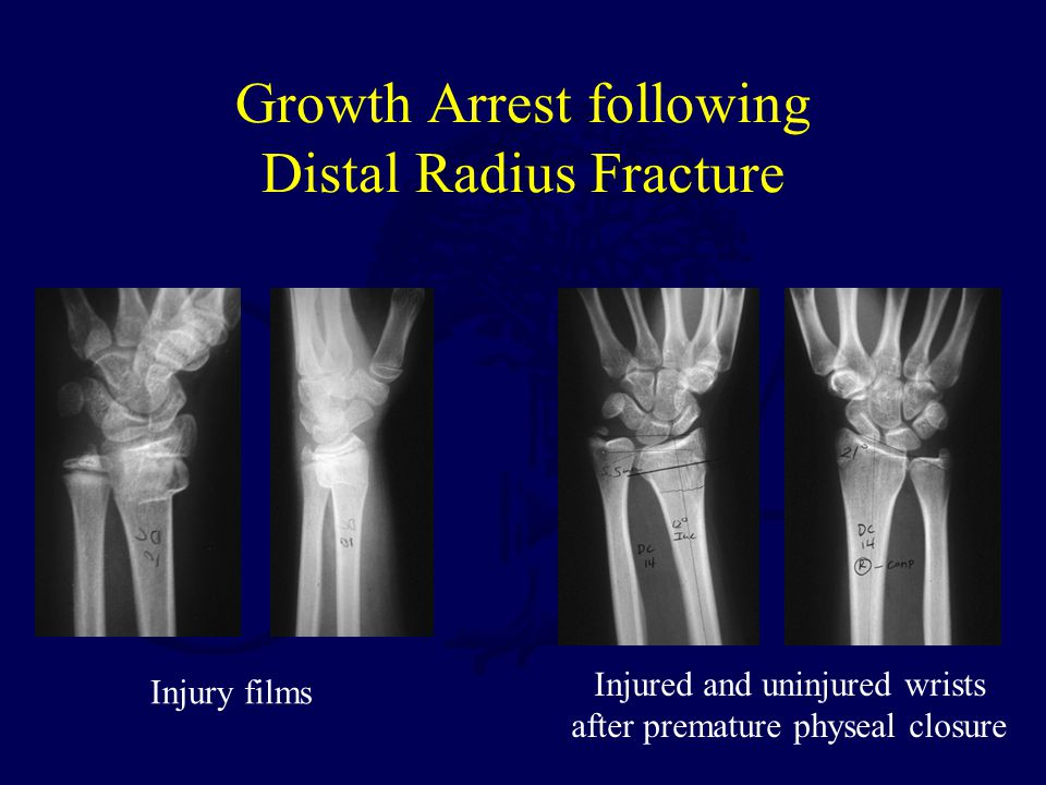 Growth Arrest following Distal Radius Fracture