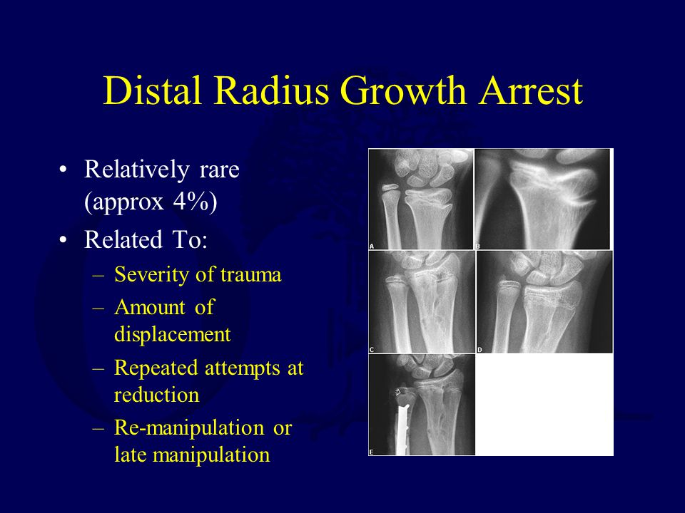 Distal Radius Growth Arrest