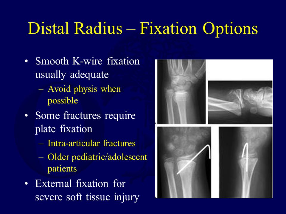Distal Radius – Fixation Options