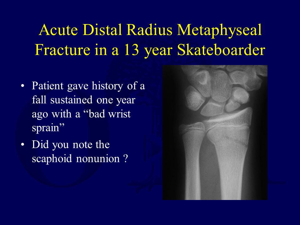 Acute Distal Radius Metaphyseal Fracture in a 13 year Skateboarder