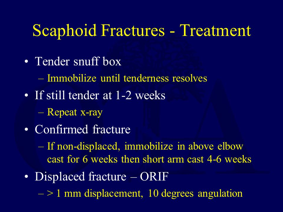 Scaphoid Fractures - Treatment