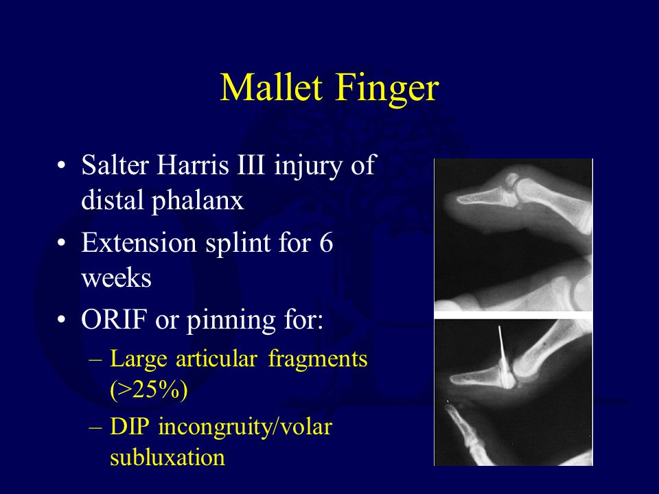 Mallet Finger Salter Harris III injury of distal phalanx