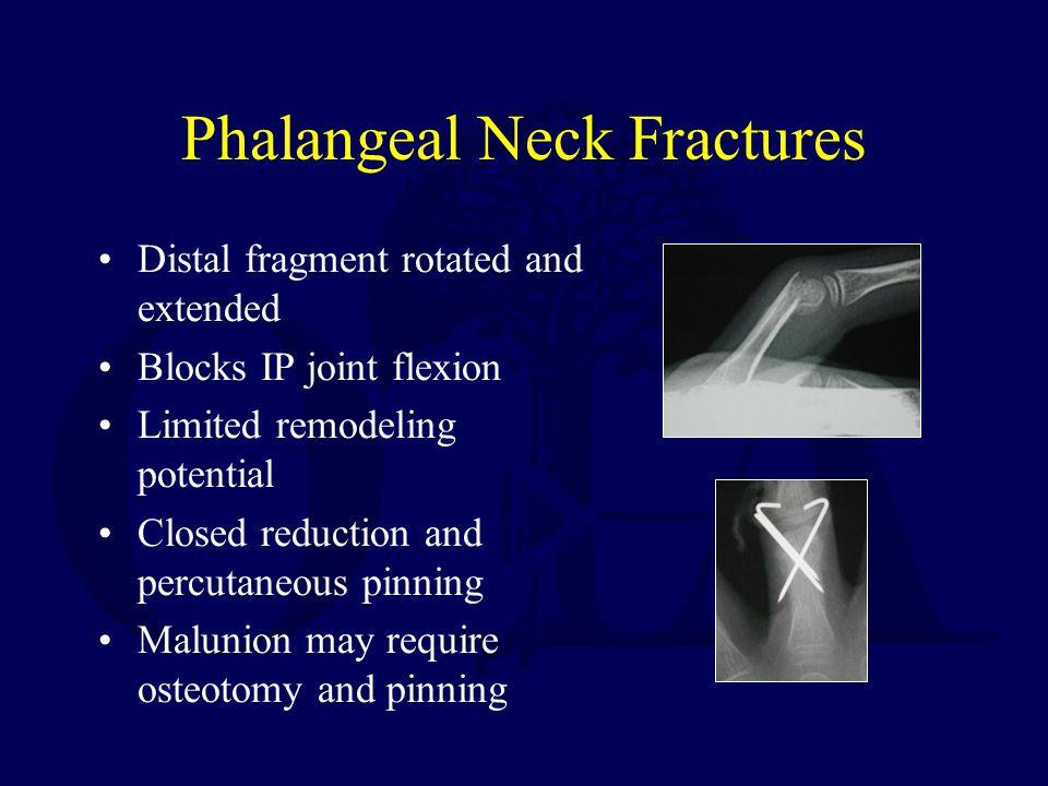 Phalangeal Neck Fractures