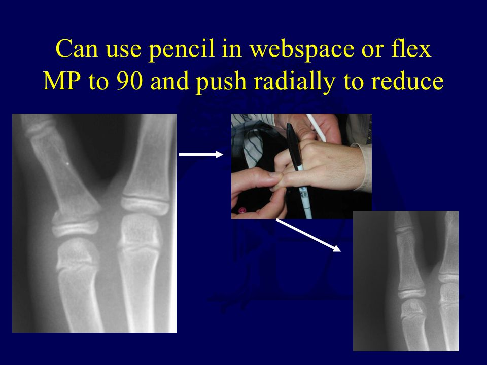 Can use pencil in webspace or flex MP to 90 and push radially to reduce