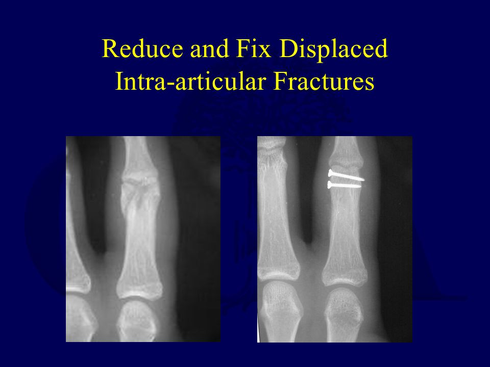 Reduce and Fix Displaced Intra-articular Fractures