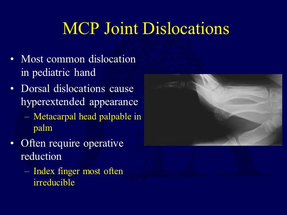 MCP Joint Dislocations