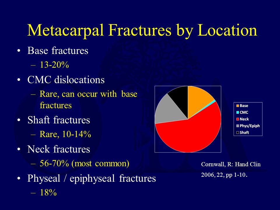 Metacarpal Fractures by Location