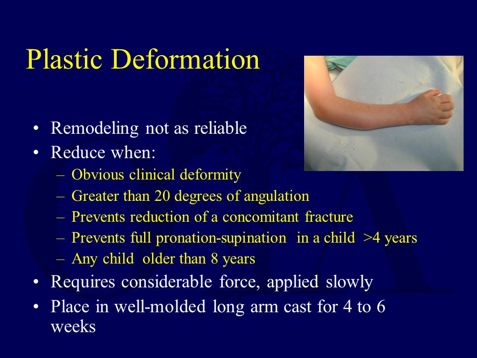 Plastic Deformation Remodeling not as reliable Reduce when: