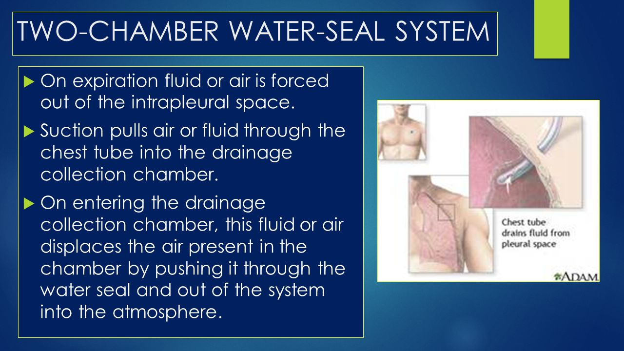 TWO-CHAMBER WATER-SEAL SYSTEM