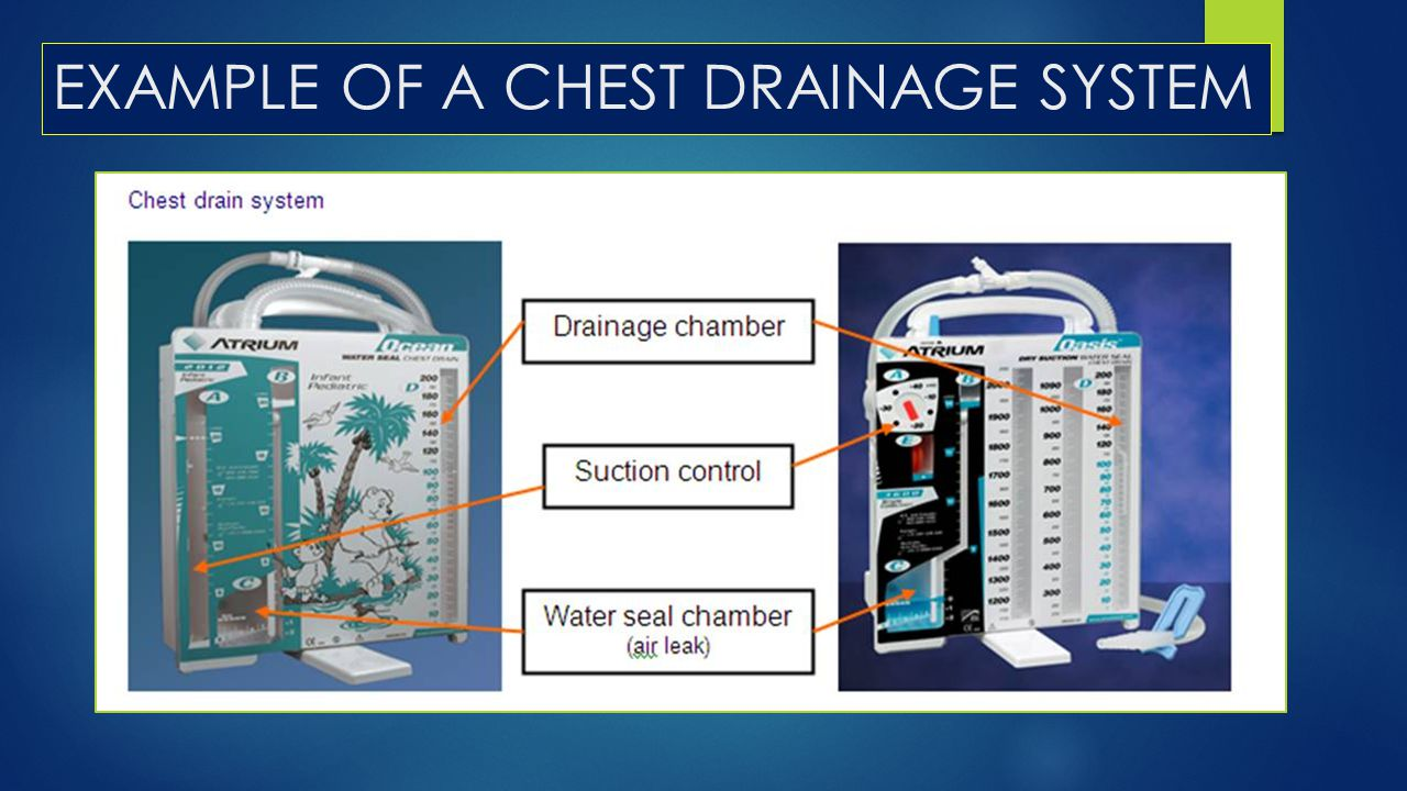 EXAMPLE OF A CHEST DRAINAGE SYSTEM