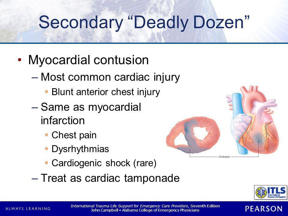 Secondary Deadly Dozen